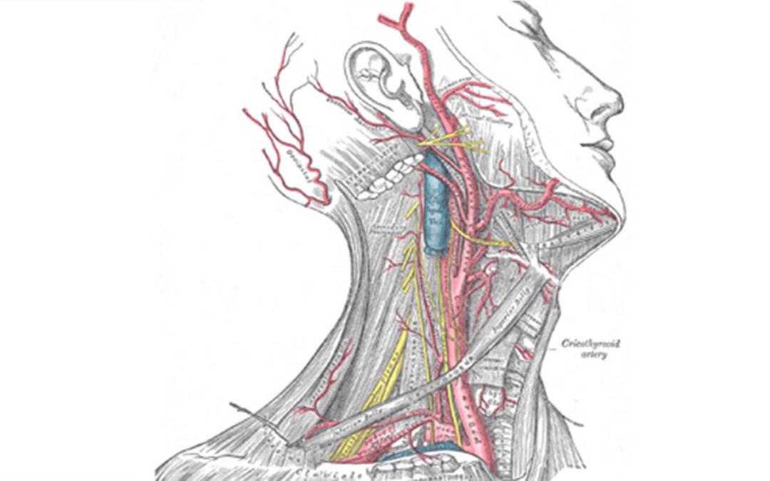 Qual o tratamento da Doença das Artérias Carótidas?