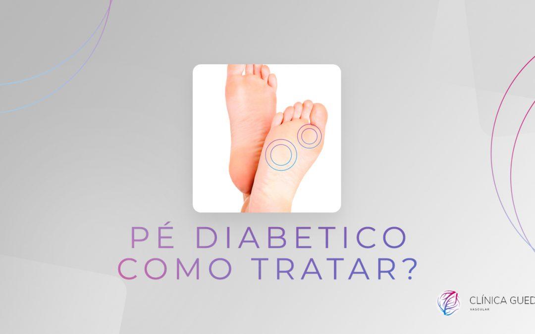 Pé diabético o que é e como tratar?